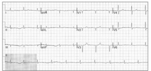 An ECG of suspected atrial fibrillation, however, it needs more analysis. This data was produced using a CardioScan myPatch Holter Monitor Device, in conjunction with Holter Monitoring Software as part of a Holter Monitor Test